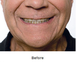 bruxism-before