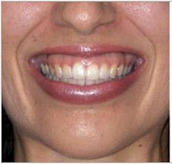 Gummy Smile Allure Clinic